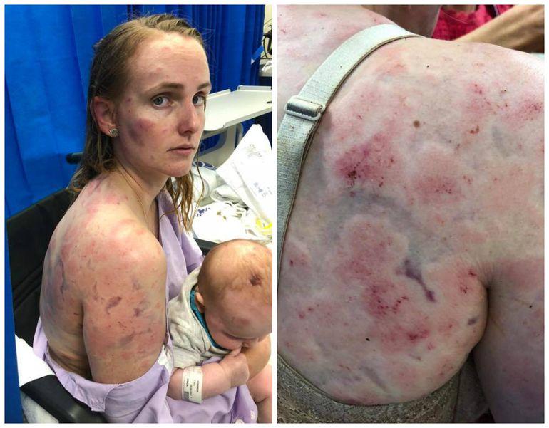 O mamă eroină și-a ferit fetița de grindină cu propriul trup! Când a ajuns la spital și și-a dat hainele jos, medicii s-au îngrozit