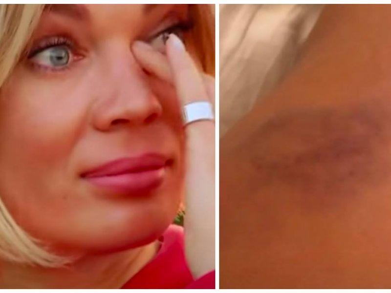 Gina Pistol s-a rănit grav, în urma unei căzături