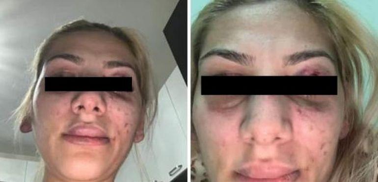Tzancă Uraganu, prima declarație după ce au apărut mai multe imagini cu soția lui bătută!