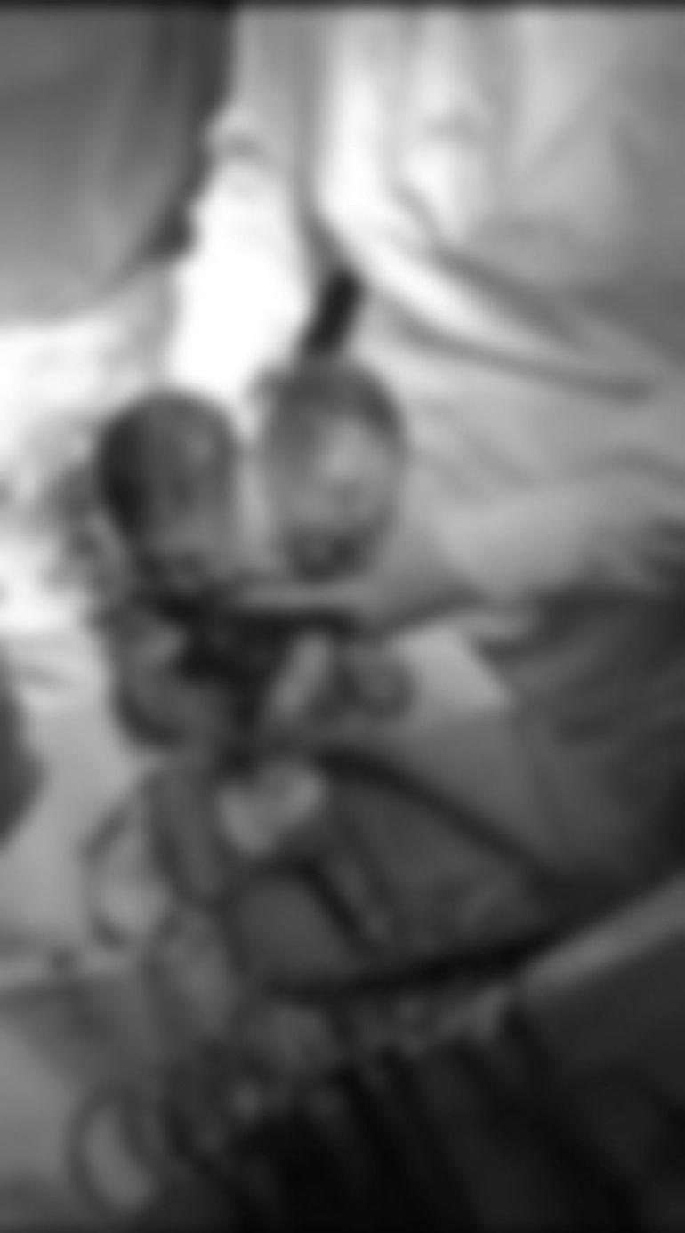 Caz șocant în București! O româncă a dat naștere unui bebeluș cu două capete