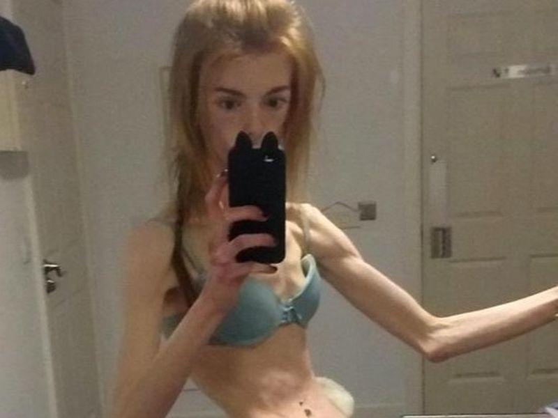 Annie Windley a mâncat doar o felie de pâine timp de 5 ani! Incredibil cum arată tânăra la 28 de kilograme