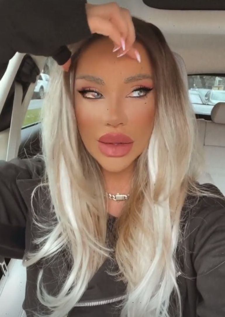 """Bianca Drăgușanu și-a făcut o nouă operație estetică! Cum arată vedeta: """"Am așa o față de rinocer..."""""""