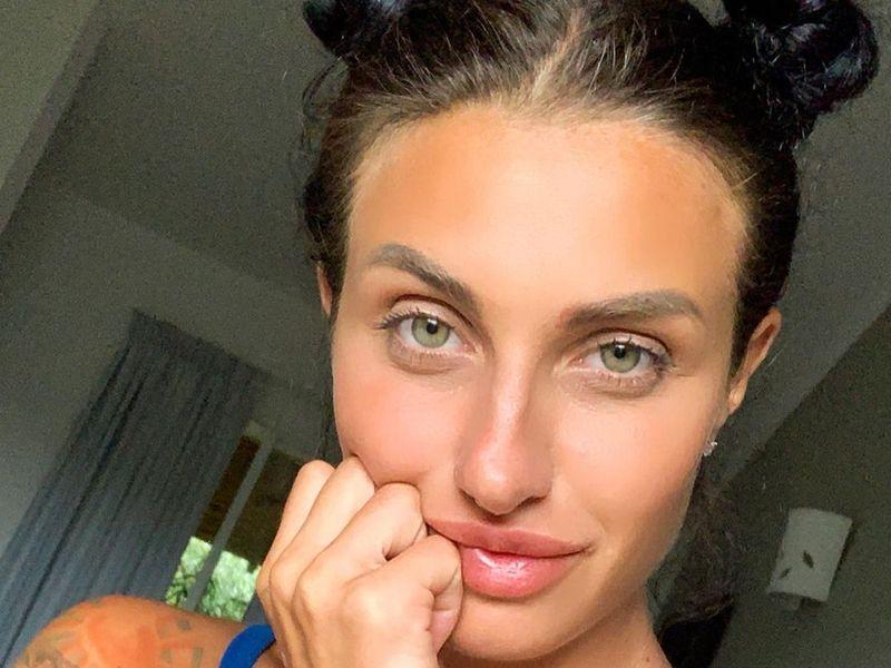 Ana Porgras s-a accident grav la Survivor România! Cum arată rănile suferite de Faimoasă: