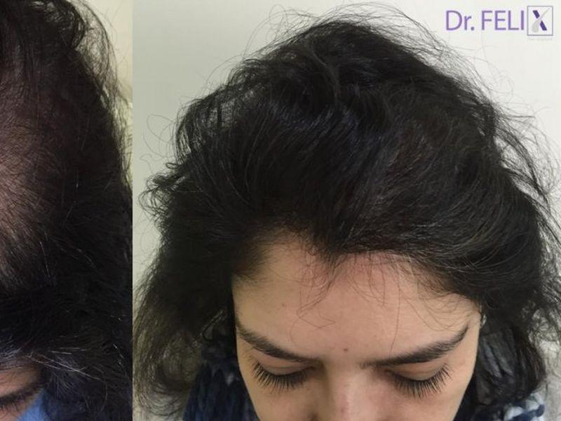 Implant de păr femei