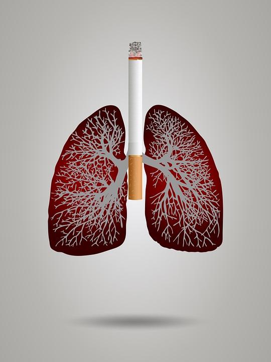 cancer-plamani-jpg.jpg