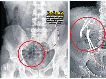 Chirurgul Gheorghe Ştefan, un nou scandal medical! După foarfeci, medicul a uitat si un ghem de aţe într-un pacient!  La un an de la operaţie, femeia acuza o stare de rău