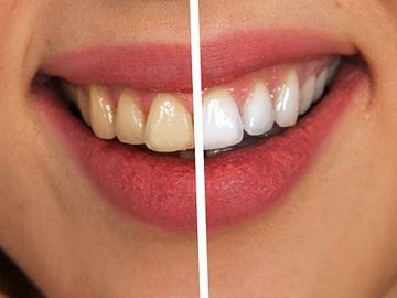 Acest ingredient te scapă de tartu şi respiraţia urât mirositoare şi îţi albeşte dinţii în timp record!