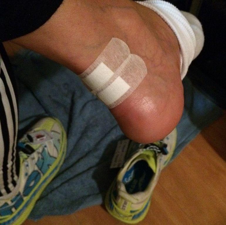 FOTO | Mihaela Radulescu si-a distrus calcaiele la maraton! Uite cum si-a mascat ranile