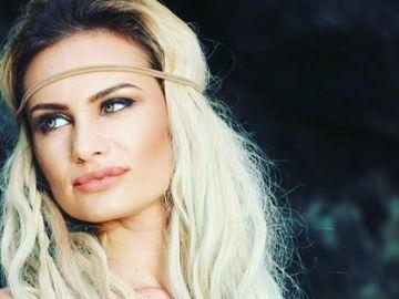 """Bianca de la """"Insula iubirii"""" este transformată total de operaţiile estetice! Fosta blondină e de nerecunoscut"""