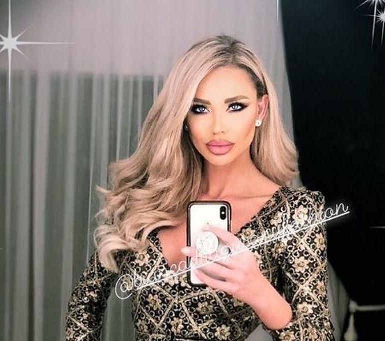 Bianca Drăguşanu şi-a mărit din nou buzele! Cum arată acum