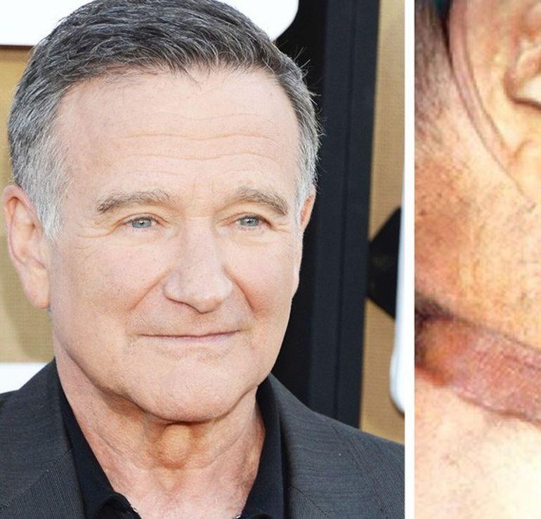 Imaginea care a ingrozit Facebook-ul in SUA! Robin Williams, spanzurat
