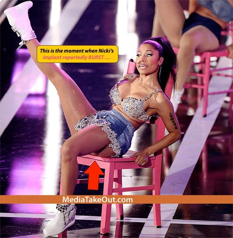 Probleme de sanatate pentru Nicki Minaj! Implanturile cu silicon din fese i s-au deplasat in timpul unui concert