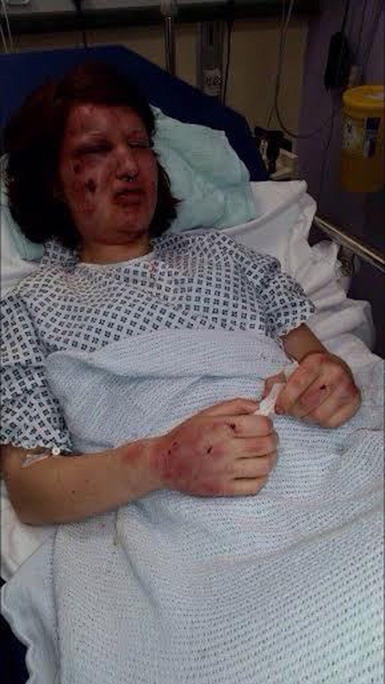 Imagini socante! A ramas desfigurata dupa ce iubitul ei a incercat sa o manance!