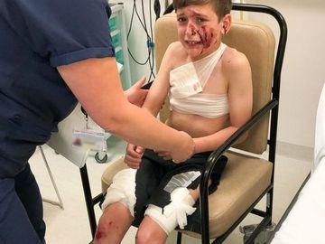 Un baietel de 11 ani a fost sfasiat de doi caini! Animalele i-au distrus fata, pieptul si picioarele