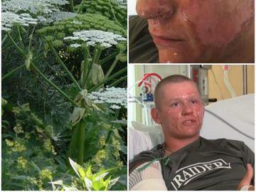 Alex, un tanar de 17 ani, a pus mana pe o planta si a ajuns la spital! Mare atentie, treci zilnic pe langa ea