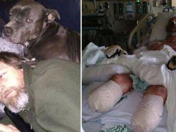 Cazul Greg Manteufel: I-au amputat mâinile şi picioarele după ce a fost lins de câine