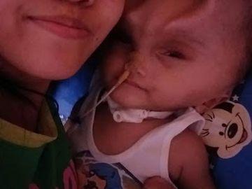 Primul copil care are coarne! Până şi mama lui s-a speriat când l-a văzut! Imaginile sunt de-a dreptul şocante