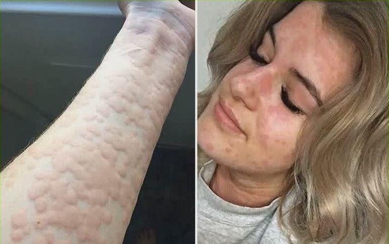 Ea este tânăra alergică la IARNĂ! Imagini şocante cu pielea fetei, la temperaturi scăzute