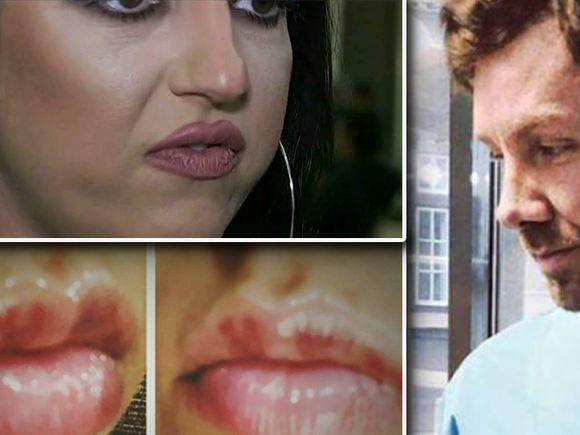 O pacientă a falsului medic italian a povestit chinul prin care a trecut după ce și-a mărit buzele
