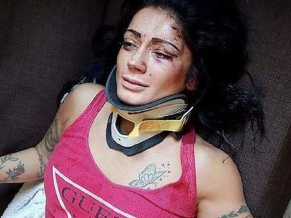 Imagini horror! Dansatoarea Alexandra a fost bătută crunt de mai mulți bărbați, în Italia