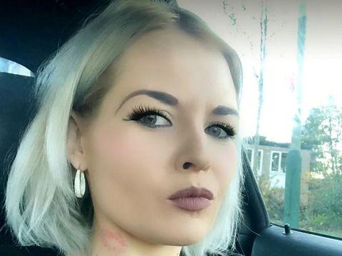O tânără a ajuns la spital complet desfigurată de iubitul ei! A bătut-o timp de o oră și a încercat să-i scoată ochii! Și medicii s-au îngrozit