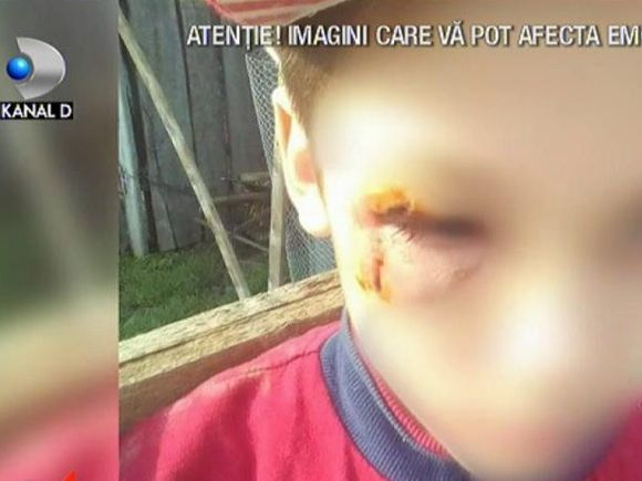 Copilul din Vaslui bătut cu bestialitate de mamă are răni grave la nivelul capului!  Ce s-a întâmplat cu femeia după ce iubitul a reclamat-o la poliție