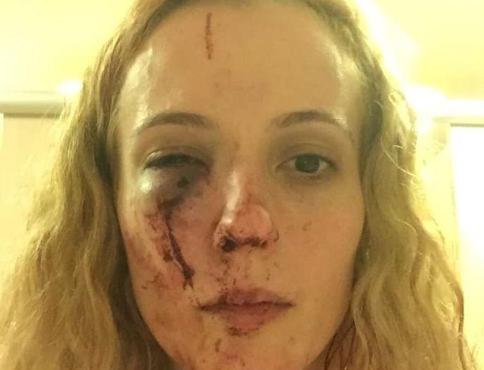 O româncă din Anglia, ruptă-n bătaie pe stradă de 10 puști! Ce comentariu făcuse românca