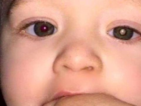 O mamă și-a fotografiat bebelușul de 11 luni și a descoperit ceva bizar. S-a dus imediat la doctor și când i s-a spus verdictul i s-a făcut rău. De ce suferea micuțul