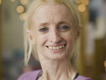 Femeia care îmbătrânește de opt ori mai repede! Cazul a șocat lumea medicală