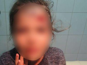 Fetiță desfigurată cu un borcan de bulion! Totul a pornit de la o pungă de pufuleți