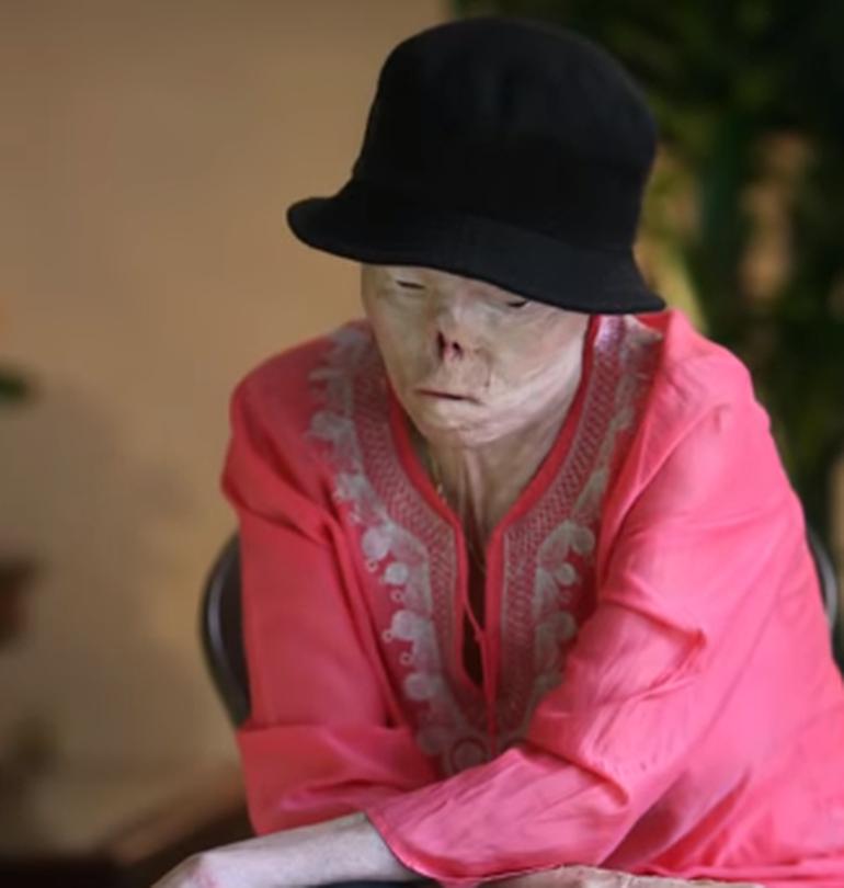 Femeia care a fost desfigurată în urmă cu 20 de ani și a devenit simbolul riscurilor la volan a murit