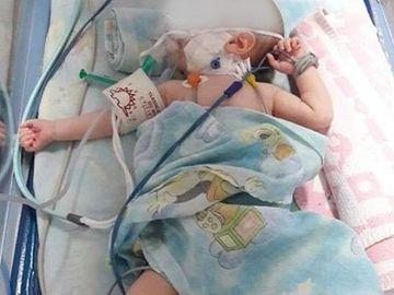 Cutremurător! Bebelușul din Sebeș care s-a născut cu o malformație gravă a murit