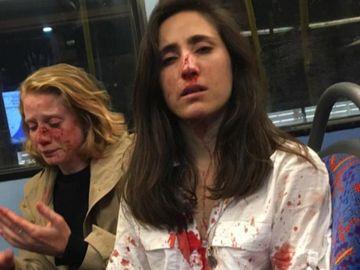 Umilite şi umplute de sânge în autobuz. Două tinere, bătute şi jefuite pentru că au refuzat să se sărute