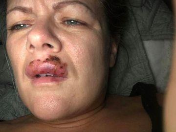 """A vrut să își mărească buzele dar s-a trezit mutilată! """"Îmi puteam pierde vederea""""!"""