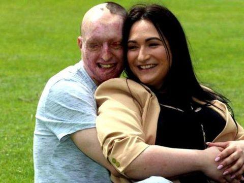 Românul desfigurat cu acid de fosta logodnică s-a căsătorit! Cum a arătat la nuntă