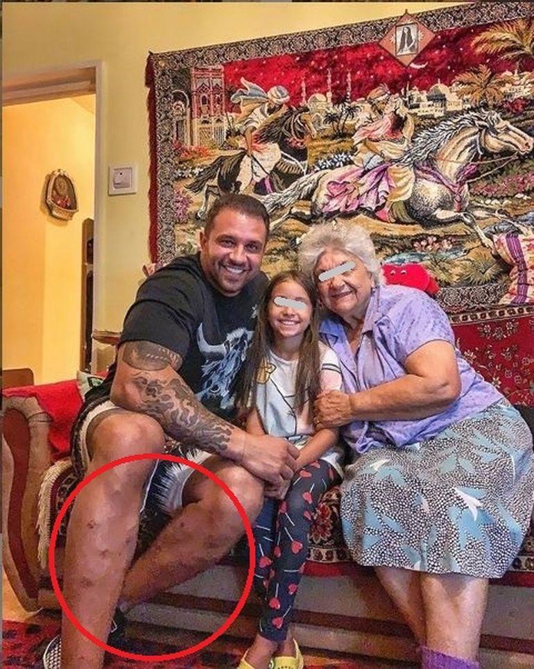 Alex Bodi a suferit o intervenţie chirurgicală în secret! Vezi ce boală îi afectează picioarele iubitului Biancăi Drăguşanu! FOTO