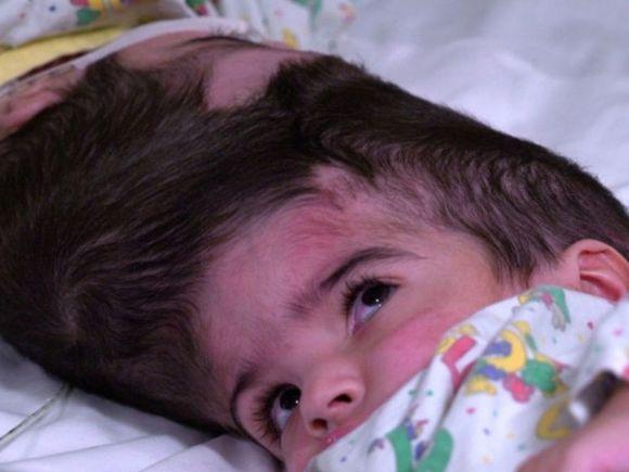 Operația care a durat 50 de ore! Două siameze cu craniile și creierele unite au fost separate FOTO