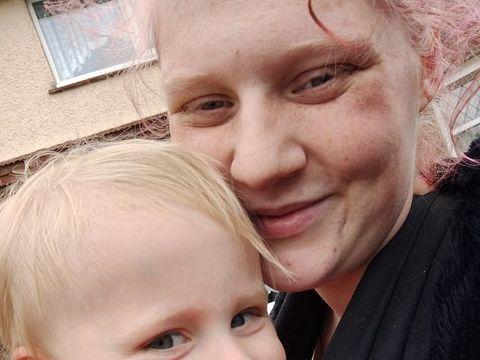 Copil de doi ani, vindecat miraculos de o cremă naturală, după ce medicii i-au prescris mai multe tratamente și nimic nu a funcționat! Încă de la naștere suferea de o eczemă extrem de dureroasă