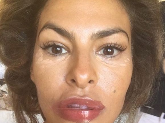 """Una dintre cele mai îndrăgite vedete, mutilată de operațiile estetice: """"Ai reușit să mă sperii"""""""