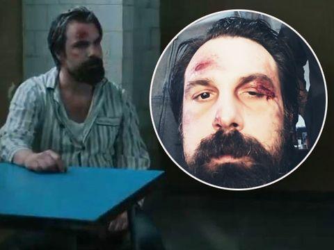 Alexandru Papadopol, desfigurat în bătaie după ce a fost prins la nudiști! Imagini spectaculoase din noul film în care acesta joacă rolul principal
