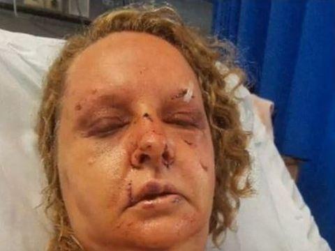 O femeie a fost bătută cu sălbăticie de soțul ei! A mutilat-o și a băgat-o în spital, iar după ce a stat de vorbă cu Poliția, femeia a aflat cine era el, de fapt