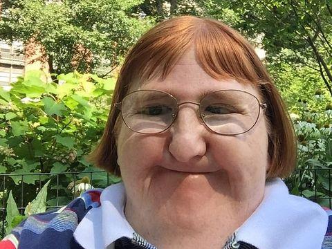 S-a născut cu o malformație genetică, s-a operat de 26 de ori, însă internauții i-au spus că e prea urâtă ca să-și facă selfie-uri. Reacția ei, neașteptată. I-a înduioșat pe mulți oameni