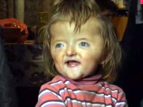 """O fetiță de doi ani nu este acceptată la creșă pentru un motiv terifiant: """"Ar putea speria alți copii."""""""