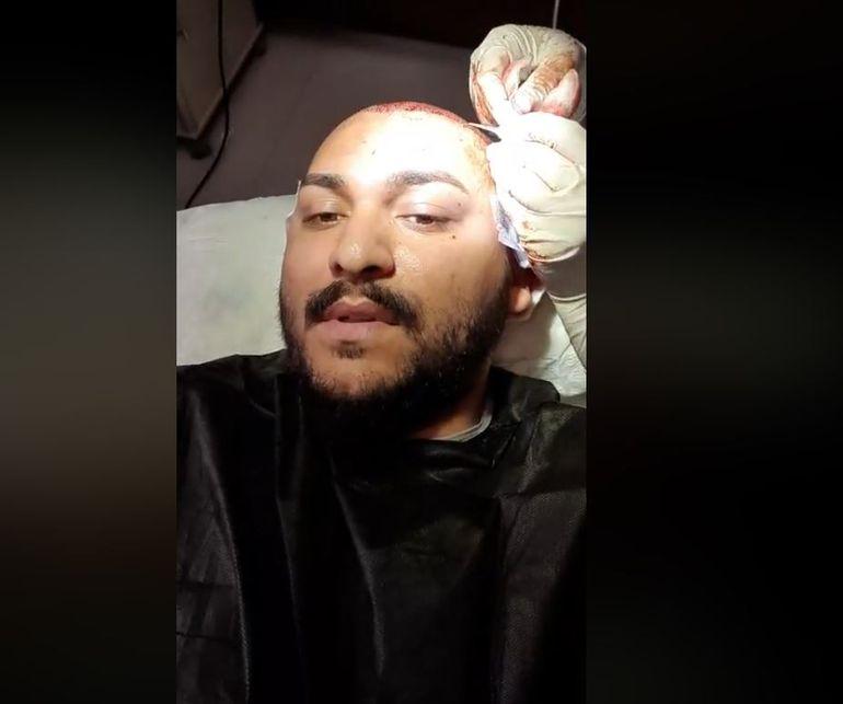 Dani Mocanu a făcut live de pe masa de operație! Manelistul și-a făcut implant de păr la o clinică din Turcia