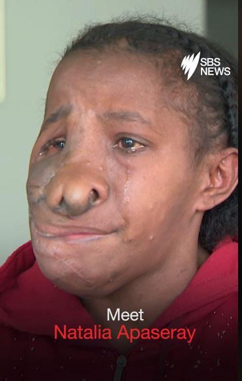 """Natalia avea tumori pe toată fața! Cum arată acum, după operație: """"Nu trebuie să îmi mai ascund chipul!"""""""