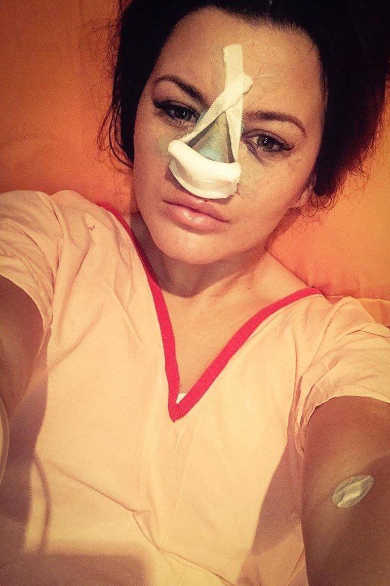 Carmen de la Sălciua s-a pozat cu bandajele pe nas după operația suferită FOTO