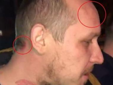 Avem imagini cu ieșirile violente ale lui What's Up! A sărit la bătaie și totul a fost filmat