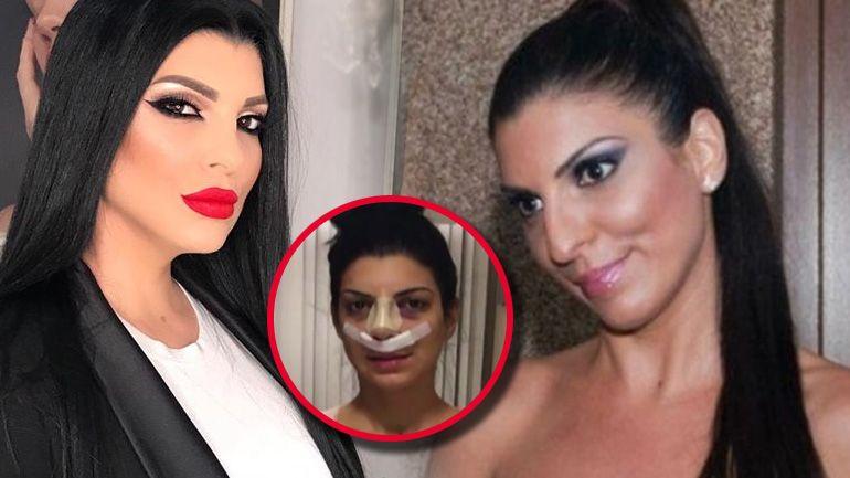 """Cum a minţit Andreea Tonciu că nu îşi va face operaţie estetică la nas: """"Ăsta e farmecul meu. Nu mi-l voi opera niciodată"""""""