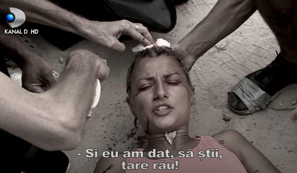 ȘOCANT, cum arată capul Lolei de la Survivor după ce-a fost lovită și a rămas fără păr