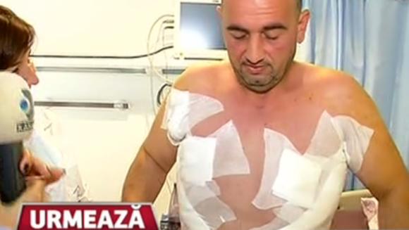 A riscat totul pentru a scăpa de marele complex! Marius Stoica, bărbatul care a slăbit 170 de kilograme, s-a operat în premieră!